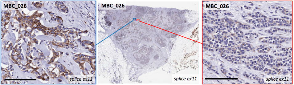 A scan of a single MBC tumour, with different regions containing diverse cell types