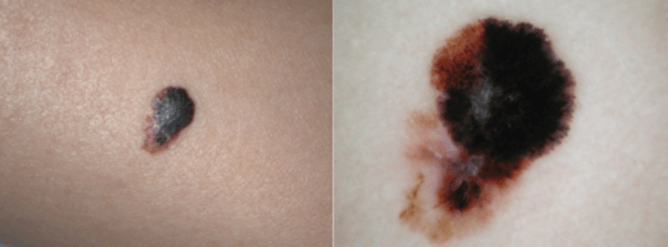Asymmetry and colour variation typical of melanoma. Peter Soyer