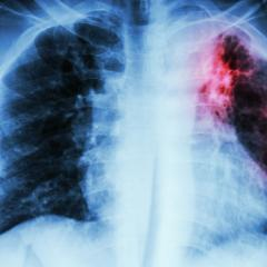 Colour enhanced x-ray showing tuberculosis lesion