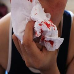 Child with nosebleed holding tissue to nose.