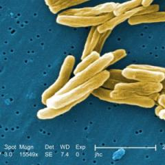 Promising new method inhibits TB-causing bacteria