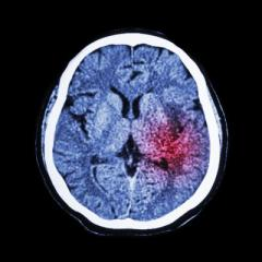 Electrical therapy offers promise for stroke patients